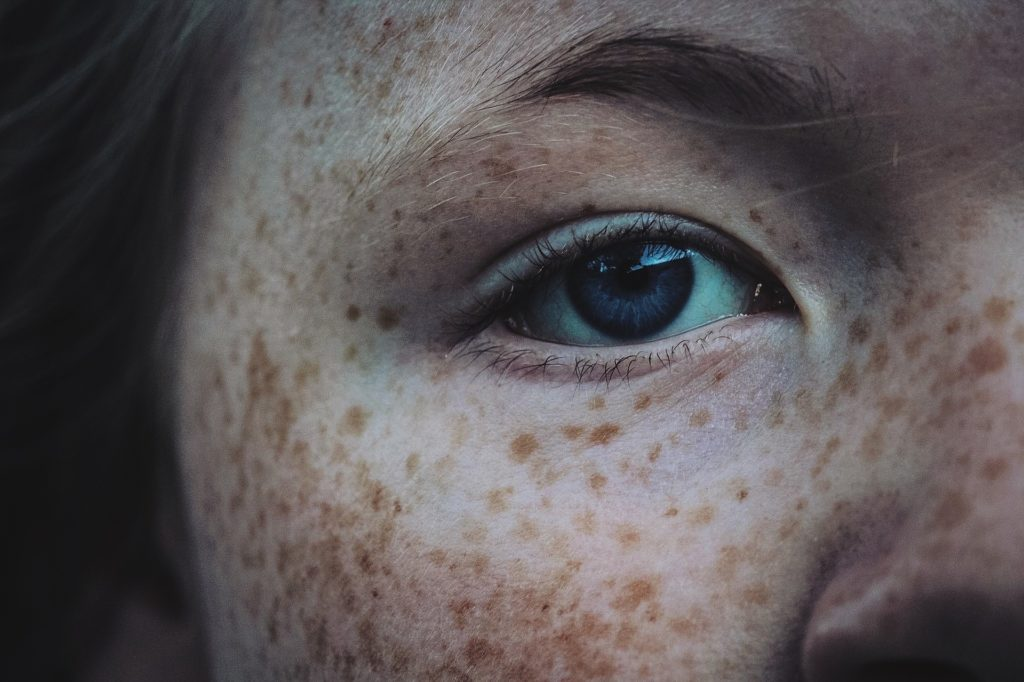 Шепоток от веснушек на лице и теле