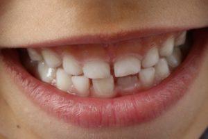 Если у ребенка выпал молочный зуб